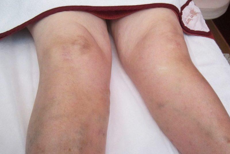 Problemas circulatórios /pernas pesadas